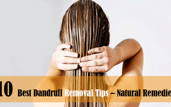 10 best natural dandruff removal remedies and solutions