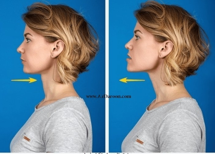 exercise for double chin