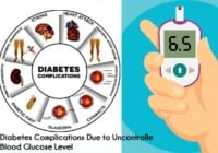Diabetes Complications Due to Uncontrolled Blood Glucose Level