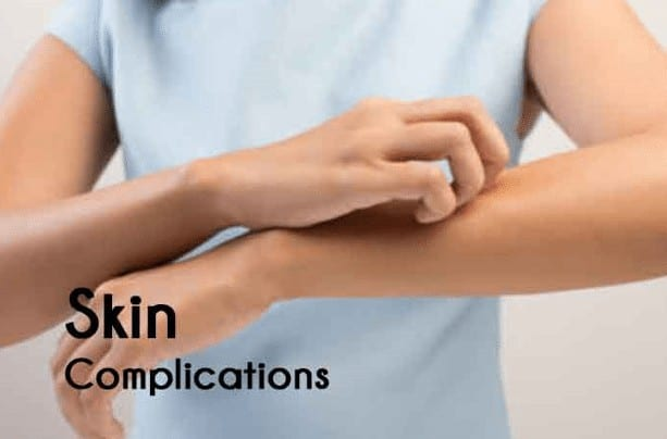 skin problems due to diabetes