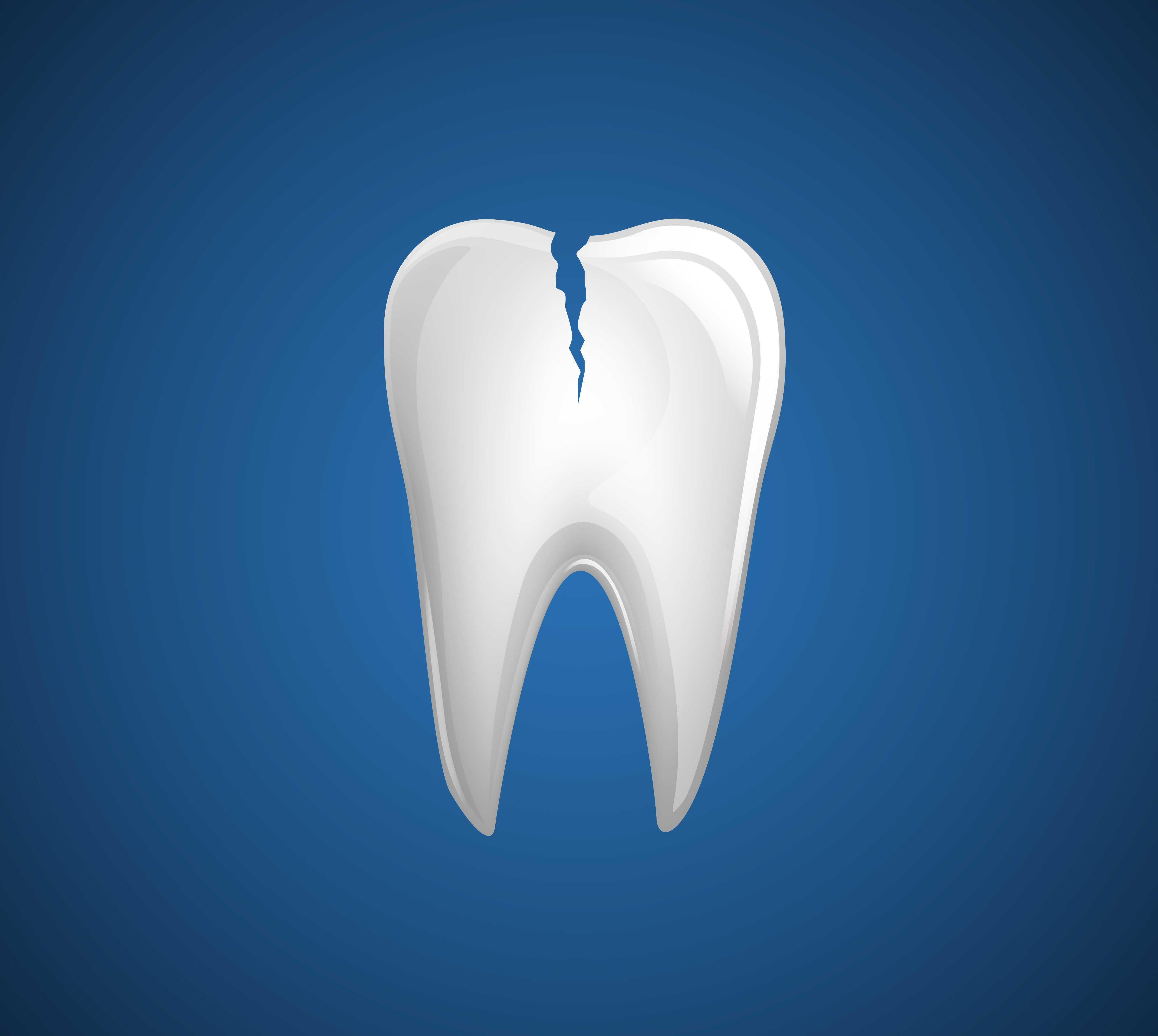 causes of chipping teeth