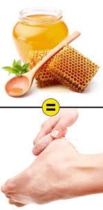 honey for cracked heels