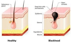 normal vs blackhead