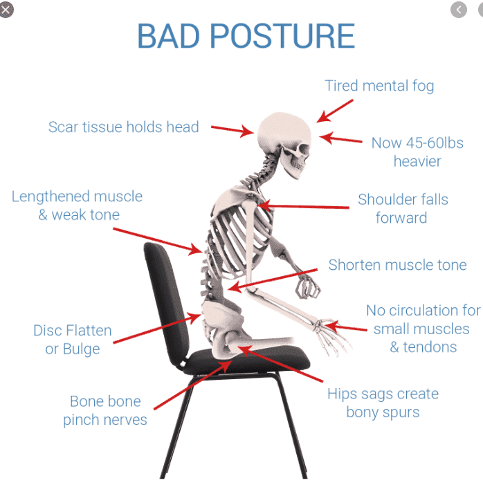 backache cause by poor ergonomics