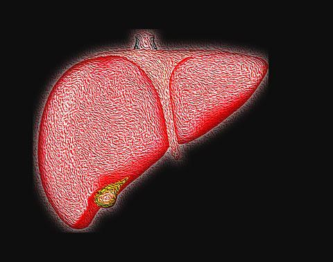 fatty liver due to high sugar intake