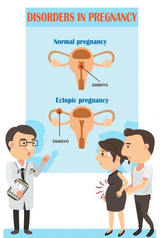 pregnancy complications ectopic pregnancy