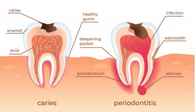 causes and treatment of periodontitis