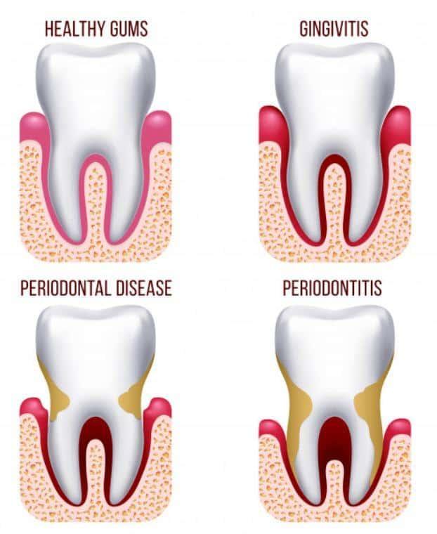 different gum problems, gingivitis