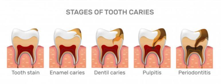 stages of dental caries or cavities