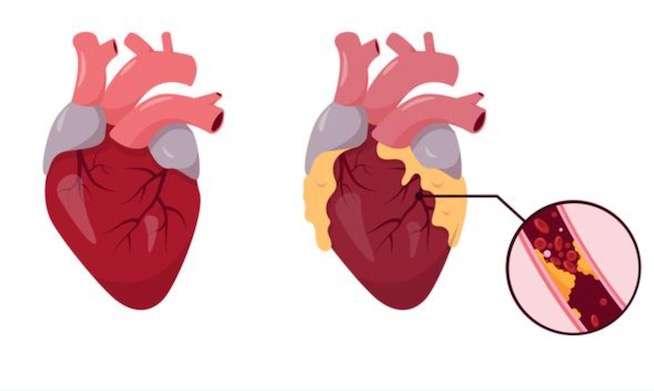 unclog arteries treatment